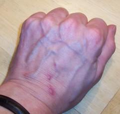 purple veins on hands